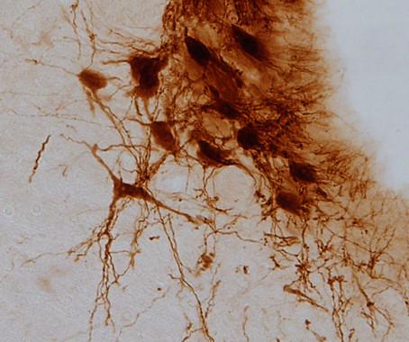 El-dolor-diabetico-y-la-ansiedad-comparten-un-mecanismo-cerebral-comun_image_380